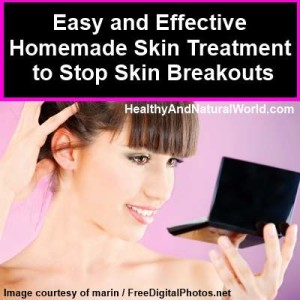 Easy and Effective Homemade Skin Treatment to Stop Skin Breakouts