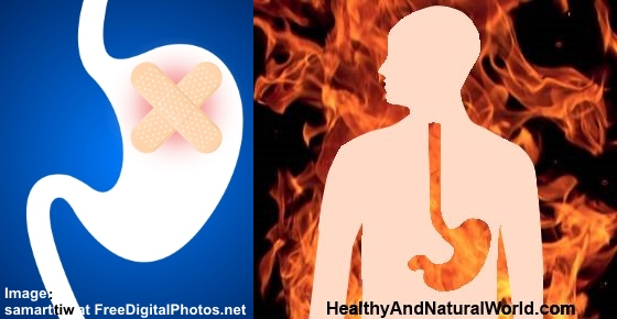 12 Effective Natural Treatments for Heartburn and Stomach Ulcers