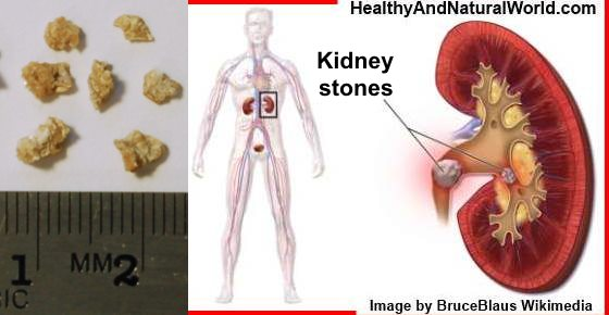 How to Treat Kidney Stones Naturally