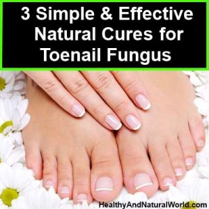 3 Simple and Effective Natural Cures for Toenail Fungus