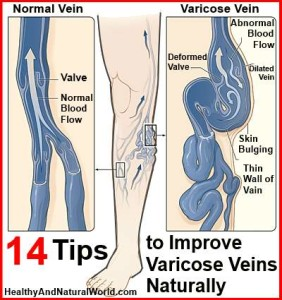 14 Tips to Improve Varicose Veins Naturally