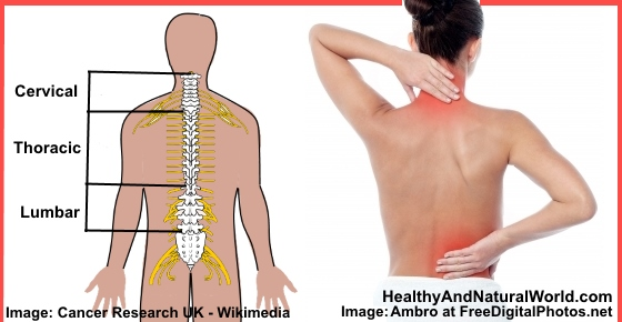 Upper Back Pain Natural Remedy