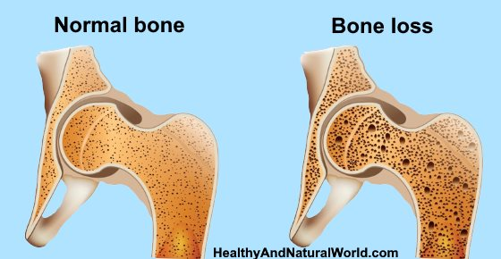 How to Increase Bone Density and Build Healthy Bones (Including Osteoporosis Diet)