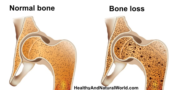 Discover The 4 Steps to Prevent Osteoporosis