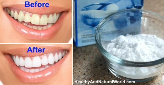 13 Natural Methods for Teeth Whitening