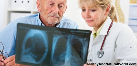 Reduce The Risk For Lung Cancer With Garlic
