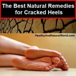 Revisor vms keygen. natural remedy for heel cracks. graphicsgale crack 1.93