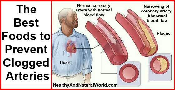 Foods To Eat To Prevent Clogged Arteries