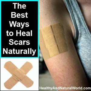 how to heal scars naturally