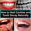 heal tooth decay naturally