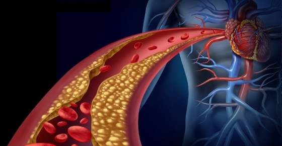 10 Simple and Effective Ways to Lower Cholesterol Naturally