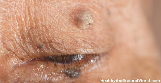 Naturally Remove Warts At Home