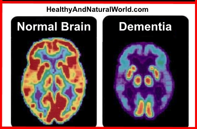 This Common Vitamin Deficiency Can Lead to Dementia
