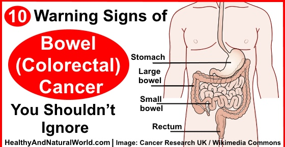 Colon Cancer Warning Signs Of Colon Cancer
