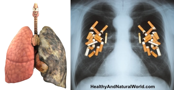5 Natural Ways To Quit Smoking (Scientifically Proven)