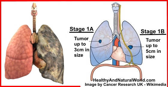 Lung Cancer - Signs And Symptoms You Shouldn't Ignore