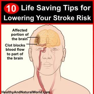 10 Life Saving Tips for Lowering Your Stroke Risk