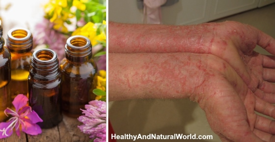 The Top 12 Essential Oils For Eczema Recipes Backed By