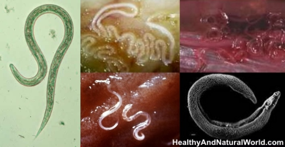 What Foods Help Get Rid Of Parasites Naturally