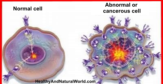 Cancer Is Curable Now - Watch Free Documentary