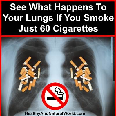 See What Happens to Your Lungs if You Smoke Just 60 Cigarettes