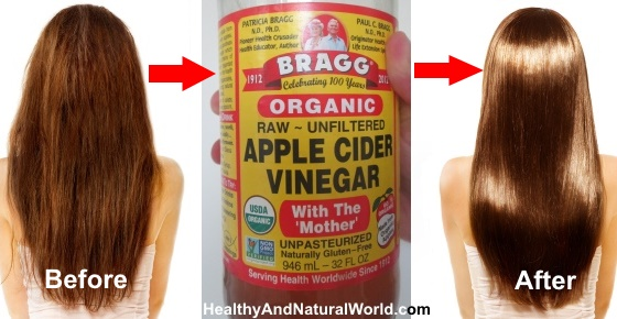 Natural Hair Loss Treatment Apple Cider Vinegar