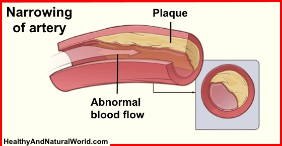 How to Protect and Unblock Your Arteries With a Simple Fruit