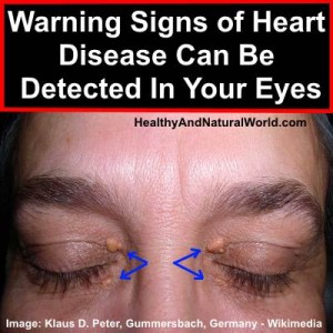 Warning Signs of Heart Disease Can Be Detected In Your Eyes