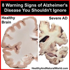 8 Warning Signs of Alzheimer's Disease You Shouldn't Ignore
