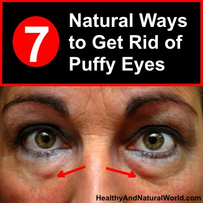 Natural Black Eye Remedies