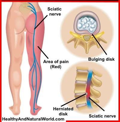Effective Stretches For Sciatic Nerve Pain Relief