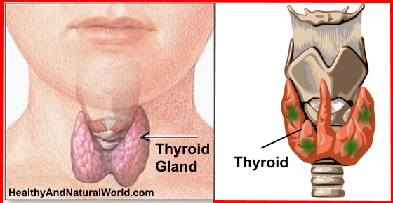The Most Common Thyroid Disorders and What You Need to Know