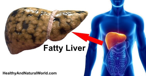 Fatty Liver - Signs, Symptoms and How to Prevent It