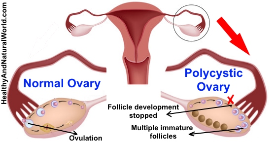 Polycystic Ovarian Syndrome Pcos Natural Treatments
