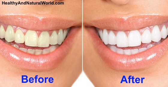Healthy Natural Way To Whiten Teeth