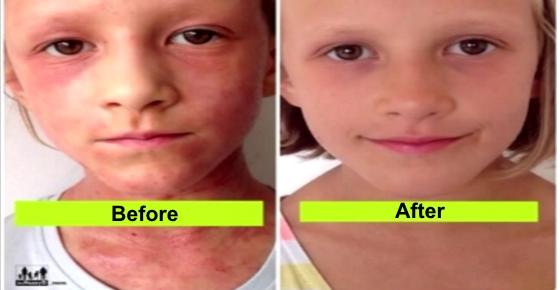 How to Use Raw Food Diet to Treat Eczema