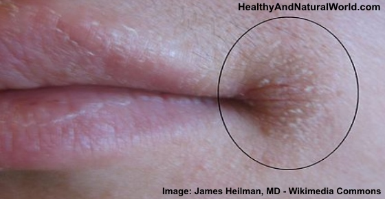 The best natural remedies for treating angular cheilitis for Bouton interieur levre bouche