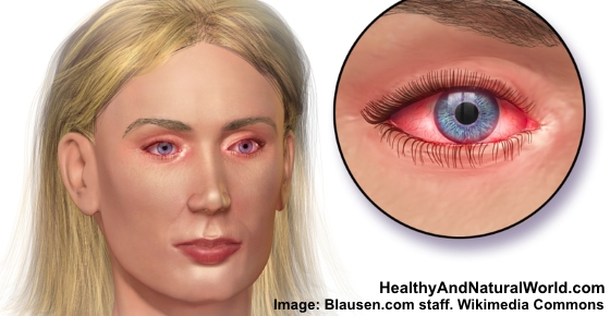 The Best Home Remedies for Pink Eye (Conjunctivitis)