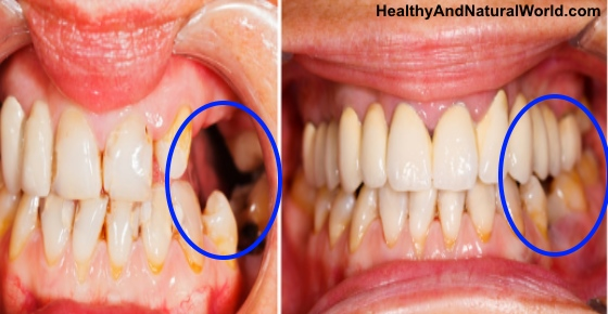 How to Regrow Teeth in Your Mouth in 9 Weeks