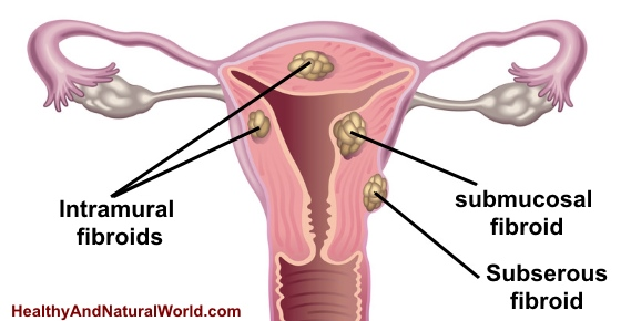 7 Warning Signs You May Have Uterine Fibroids