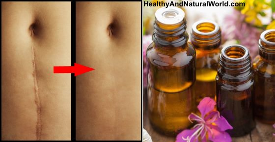Best Natural Antibacterial Oil