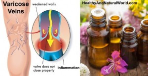 The Best Essential Oils for Varicose Veins
