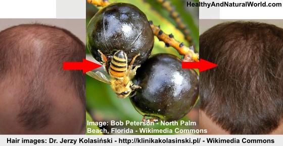 Saw palmetto hair loss in women
