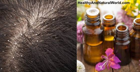 The Best Essential Oils to Get Rid of Dandruff