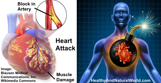80% of Heart Attacks Could Be Avoided by Doing These 5 Easy Things