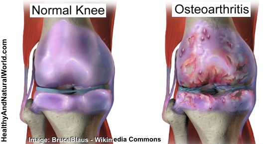 Knee Osteoarthritis Proven Remedies