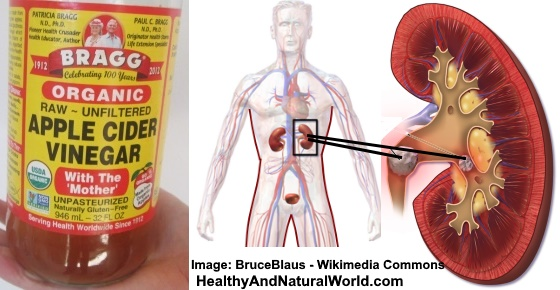 How to Use Apple Cider Vinegar (ACV) for Kidney Stones