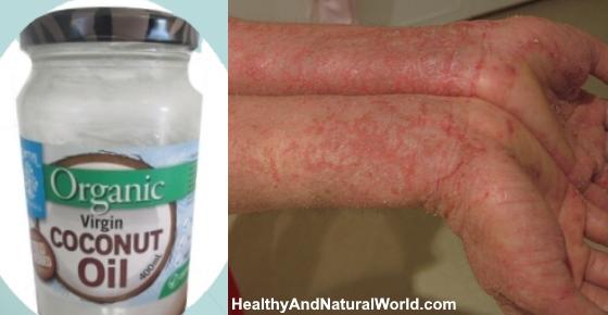Natural Coconut Oil For Eczema