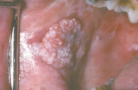 Leukoplakia can cause white spots on throat and mouth