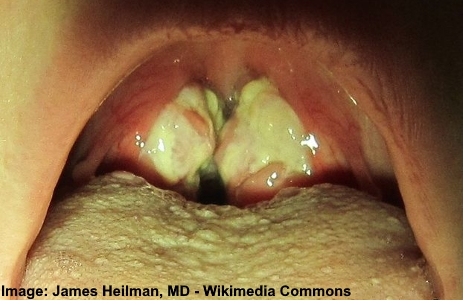 Mononucleosis - white spots on throat
